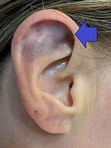 Cauliflower ear - Wikipedia