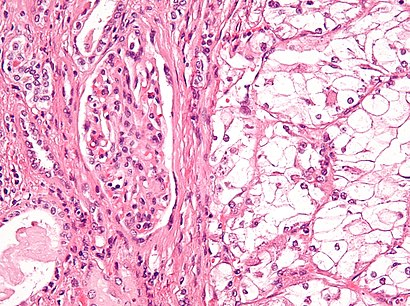 Clear cell renal cell carcinoma high mag cropped.jpg