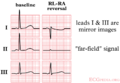 De-CableReversal2 (CardioNetworks ECGpedia).png
