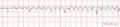 De-ECG Parkinson (CardioNetworks ECGpedia).png