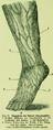 Die Frau als Hausärztin (1911) 060 Saugadern des Beines (Lymphgefäße).png
