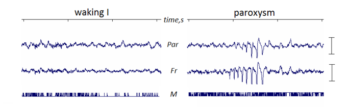Example of paroxysm in mice EEG.png