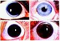 Four representative slides of corneal arcus.jpg