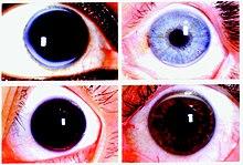 Eyeball Ring Meaning
