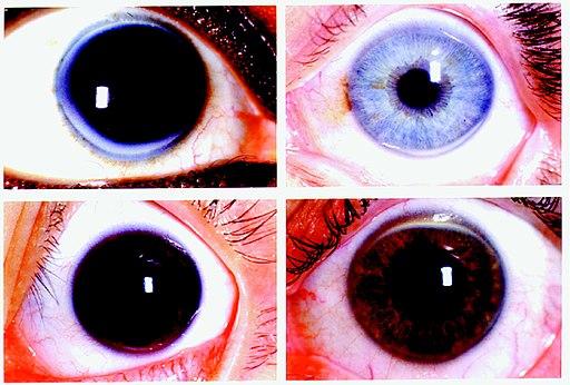 Four representative slides of corneal arcus