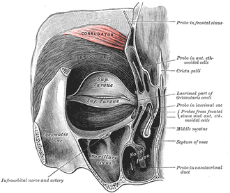 Corrugator supercilii muscle - Left orbicularis oculi muscle (notice the corrugator muscle at the top)