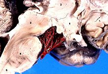 Human brain central arteries anterior midsagittal view description.JPG