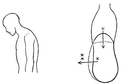 PSM V42 D042 Coughing and its effect on the abdomen.jpg