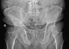 malattia di paget osso
