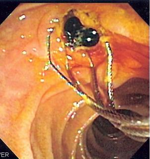 Endoscopic retrograde cholangiopancreatography endoscopy