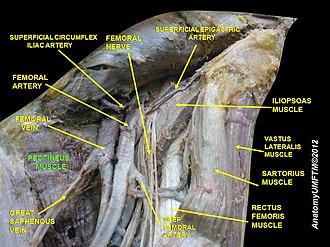 Pectineus muscle - Image: Slide 4NNNNN