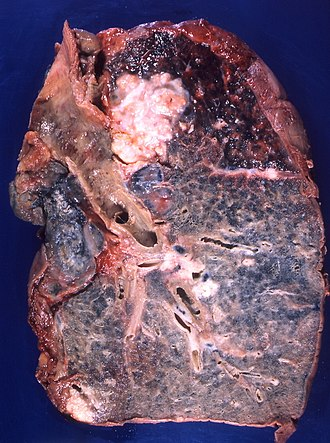 Squamous-cell carcinoma of the lung - A squamous-cell lung carcinoma developing in the bronchius