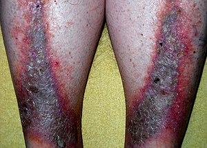 Dermatite de estase – Wikipédia