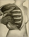 The breast- its anomalies, its diseases, and their treatment (1917) (14734064546).jpg