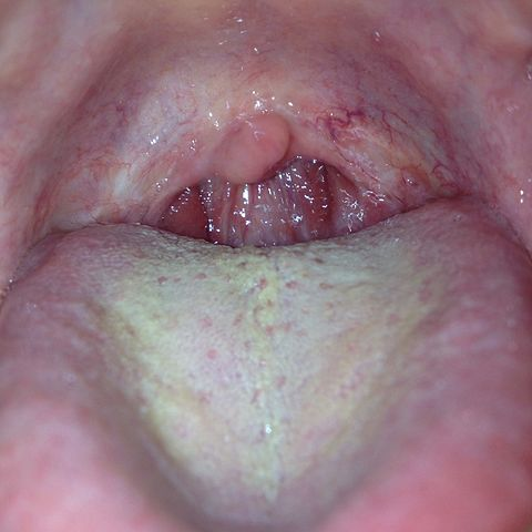 Can Mouth Warts Spread Through Drinks