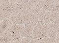 Wuchereria bancrofti (YPM IZ 093335).jpeg