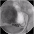 Конечная точка эмболизации - стаз в маточной артерии.png