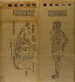 Acupuncture charts Wellcome V0018660.jpg