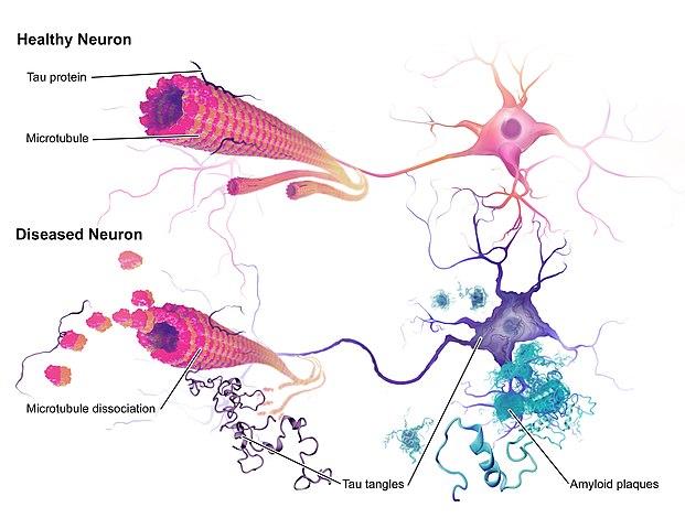 Healthy protein versus diseased proteins model
