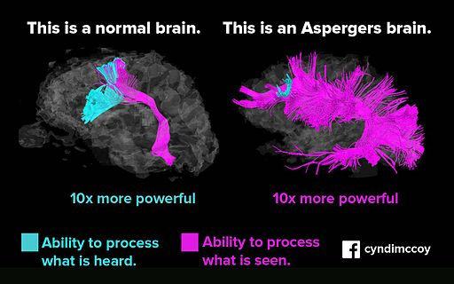 Asperger vs normal brain