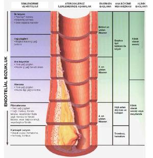 Serebral Ateroskleroz Nasıl Tedavi Edilir