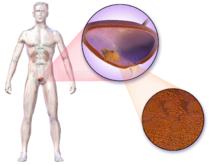 appendix pain icd 9