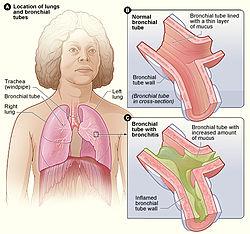 inflammation i luftrören