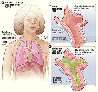 Bronchitis type of lower respiratory disease