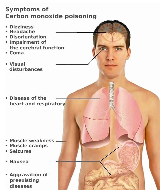 CO toxicity symptoms (en)