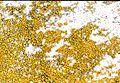 Caloplaca citrina-3.jpg