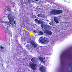 Cystoisospora belli oocyst in epithelial cell (hematoxylin and eosin) 2.jpg