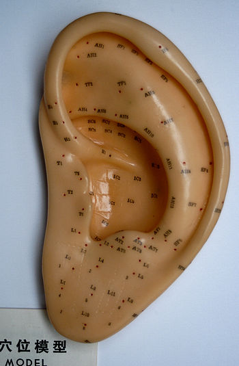 English: Ear acupuncture model - Auriculothera...