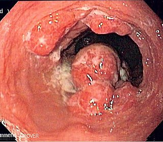 Esophageal cancer Gastrointestinal system cancer that is located in the esophagus