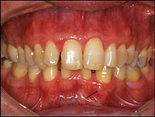 Gingival cyst - Wikipedia
