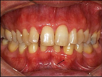 Gingival cyst - Gingival cyst of adult (arrow)