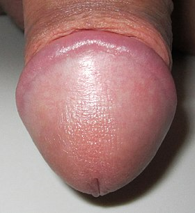 Glans Penis of A Human.jpg