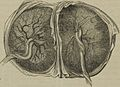 "Image from page 83 of ""The principles and practice of obstetrics"" (1864) (14802956363).jpg"