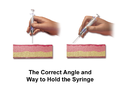 Injection Subcutaneous Correct Angles.png