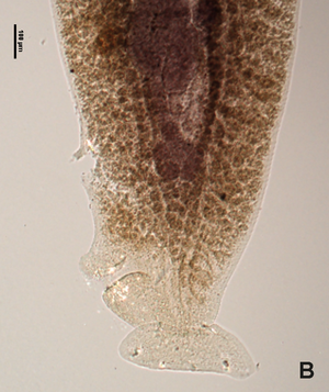 Protomicrocotylidae - Posterior part of a protomicrocotylid, showing bilateral asymmetry