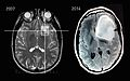 MRI Slices - 2007 and 2014 of astrocytoma patient - Steven Keating.jpg