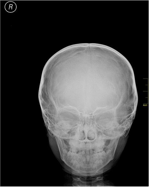 File:Medical X-Ray imaging FEF04 nevit.jpg
