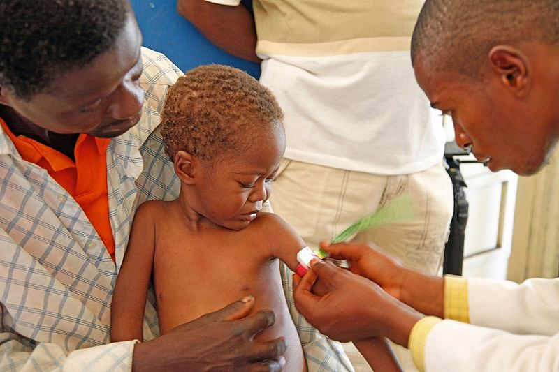 File:Medical staff examine a child for signs of malnourishment in DRC (7610291856).jpg
