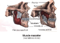 Muscle masseter.png