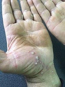 palmoplantar pustulosis icd 10)