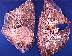 Pneumonia, mixed patterns, lobar and bronchopneumonia (3679096639).jpg