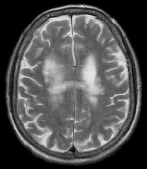 Progressive_multifocal_leukoencephalopathy (PML)