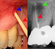 Sinugram abscessed tooth.jpg