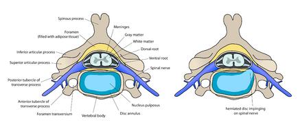 Schéma d'une coupe transversale du rachis cervical passant au niveau ...