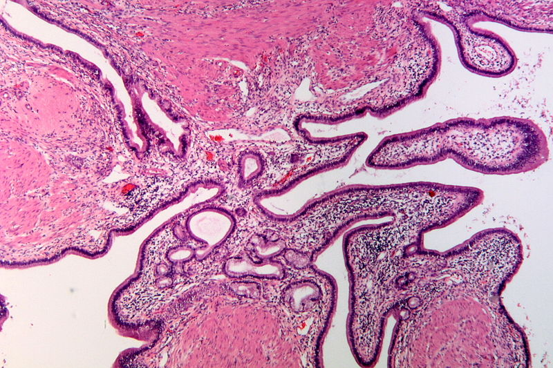 Datei:Adenomyomatous hyperplasia of the gallbladder, HE 1.JPG