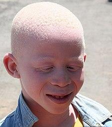 chlapec albín